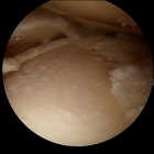 End stage arthritis widespread bone on bone