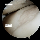 Grade 3 trochlea ulcer