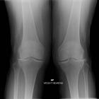 Arthritis Both Knees