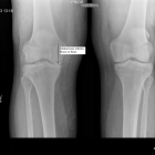X-ray of both knees prior to knee replacement