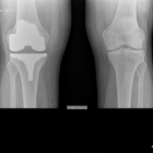 X-ray of both knees after Right knee replacement