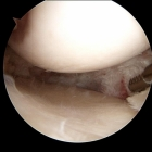 Resected meniscus