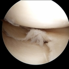 Torn meniscus for resection