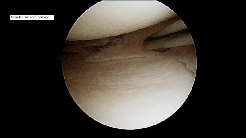 Meniscal Tear Sunshine Coast Knee And Hip Clinic