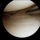 Radial Tear Meniscal Cartilage