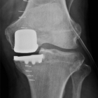 Weight bearing X-ray of Unicompartment knee replacement